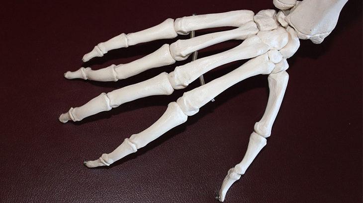 cure per artrite